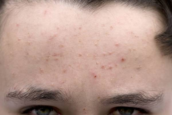 hormonal acne how to cure