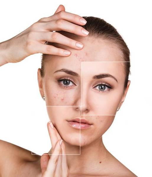 Comment traiter Acné hormonale definition / acne studio los angeles Avis