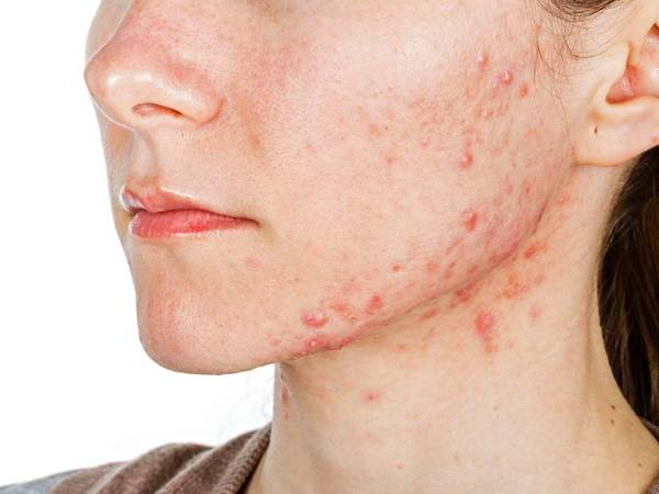 Tout savoir Xanax acné : definition of acne pimples Ebook
